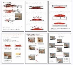 腱鞘炎11.jpg